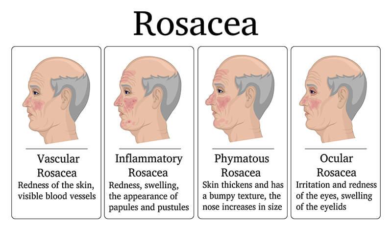 infografía rosácea